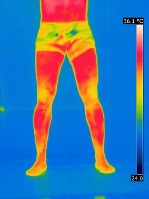 A termografia está ganhando cada vez mais espaço na medicina esportiva (créditos:David Mahamud)